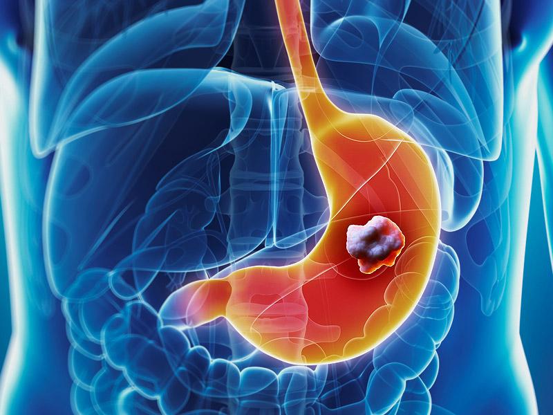 Химиотерапия при раке кишечника: особенности лечения