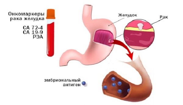 Рак желудка и питание на всех этапах, нужно всего лишь…