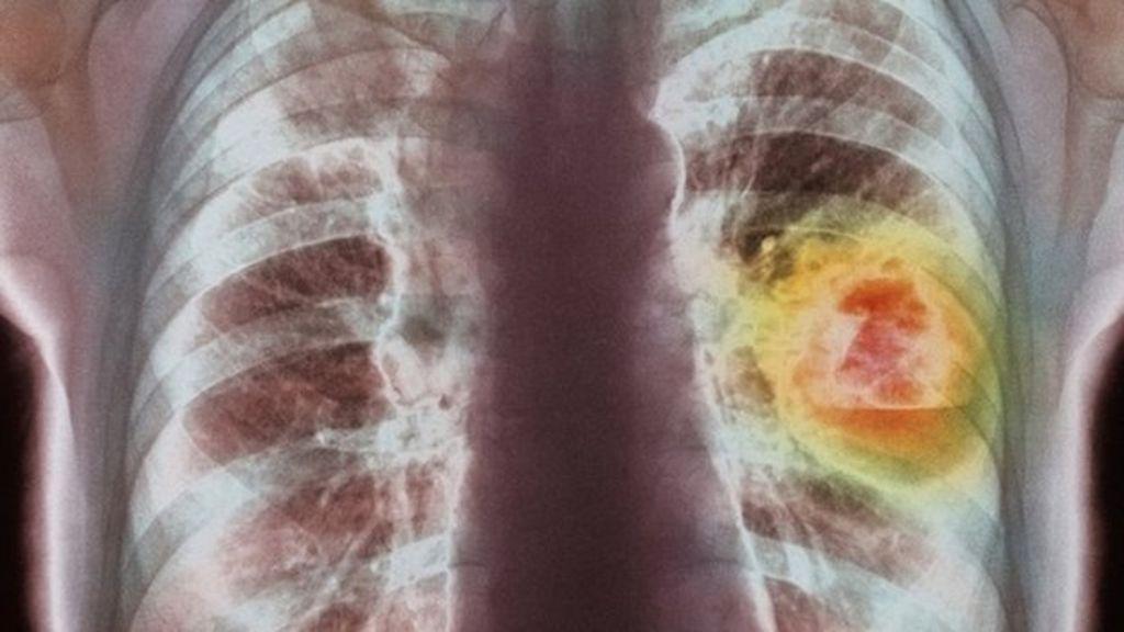Все про периферический рак легкого: чем отличается от обычного?