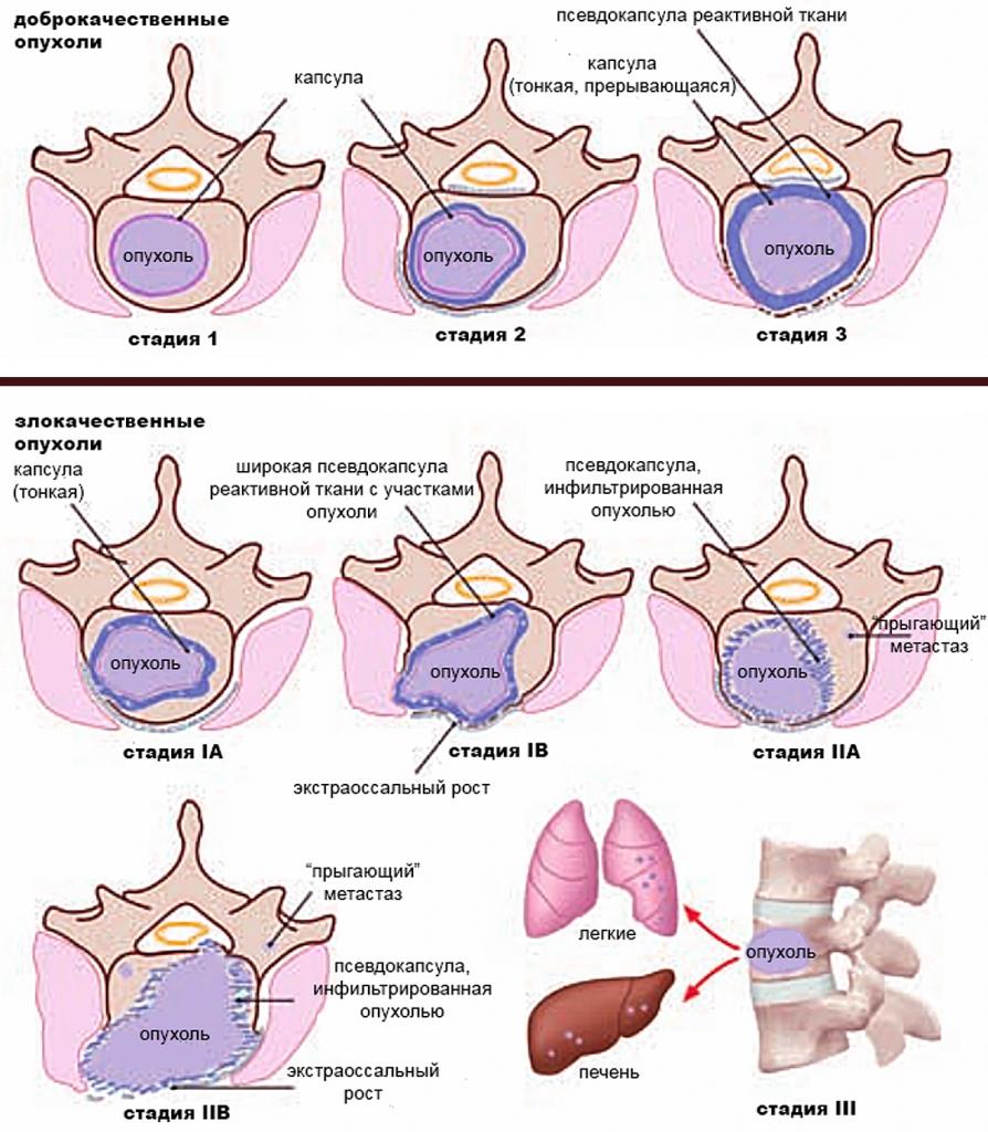 Отличия опухолей