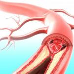 Атеросклероз кровеносных сосудов
