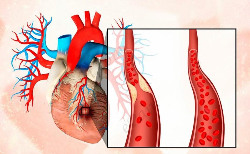 Хроническая и острая форма инфаркта