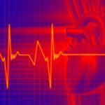 Нарушения частоты пульса