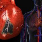 Острый инфаркт миокарда