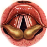 Отек гортани и ларингоспазм
