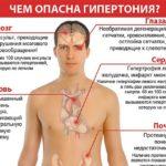Повышенное артериальное давление крови (гипертензи)