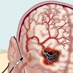 Проблемы с кровообращением в мозге