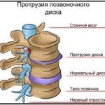 Есть ли связь между заболеваниями шейный остеохондроз и артериальное давление