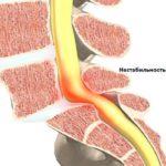 Сдавливание артерии органа каким-то новообразованием