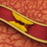 Сделает сосуды более эластичными и выводит холестерин
