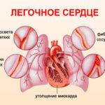 Синдром «легочного» сердца