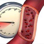 Снижение показателей кровяного давления