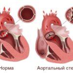 Стенозе сердечного клапана