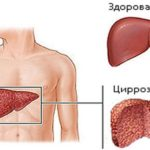 Полное описание лекарственного препарата Триамтерен