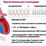Лекарственный препарат Эпросартан для лечения гипертонической болезни