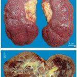 Тотальный нефросклероз