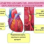 Тяжелые заболевания сердечно-сосудистой системы