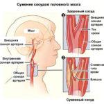 Ухудшается мозговое кровоснабжение