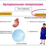 Все формы и типы гипертонии