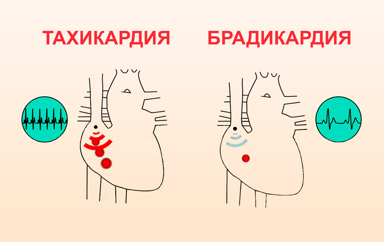 Брадикардия или тахикардия