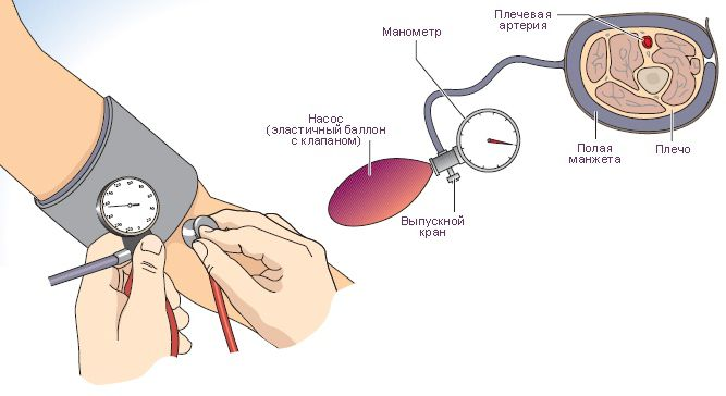 Лечение повышенного давления