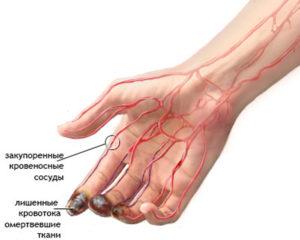 Закупорка артерии на руке