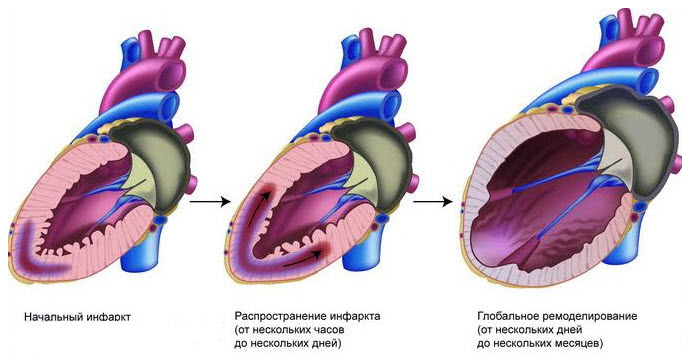 Нарушена работа сердечного желудочка слева после инфаркт