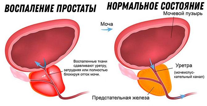 Повышение температуры от простатита простатит гной сперма