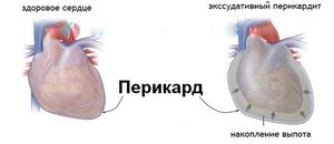 Как проявляется заболевание перикардит