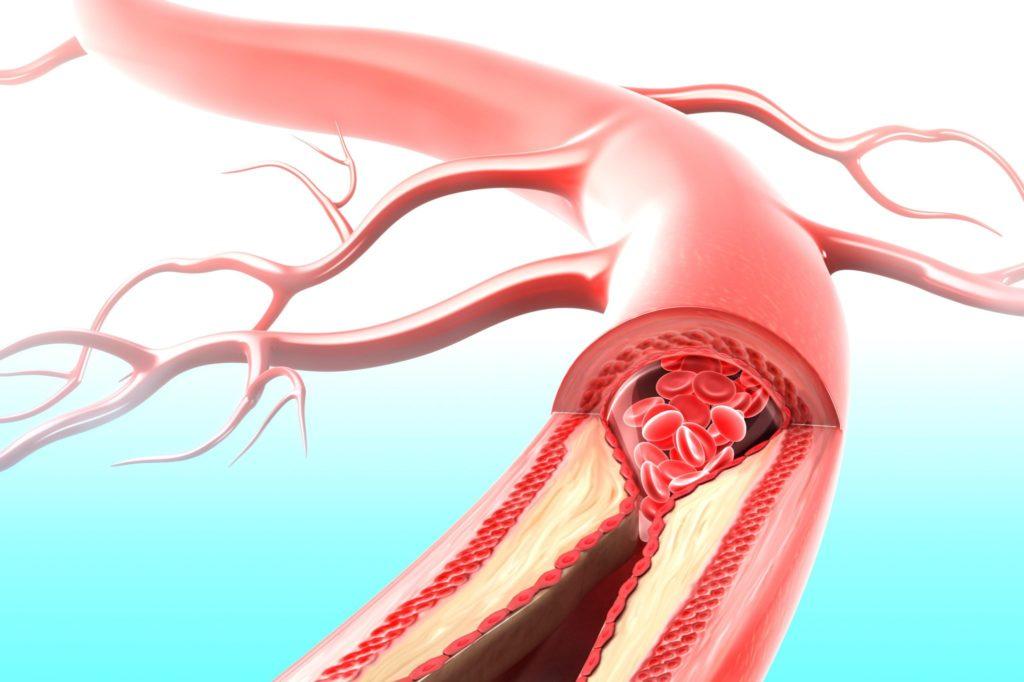 Стеноз почечной артерии